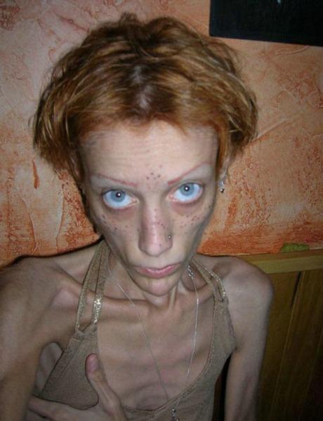 Самая худая модель в мире Изабель Каро умерла в конце прошлого года.