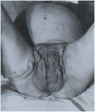 lizhet-sindrom-postoyannogo-seksualnogo-vozbuzhdeniya-ochen
